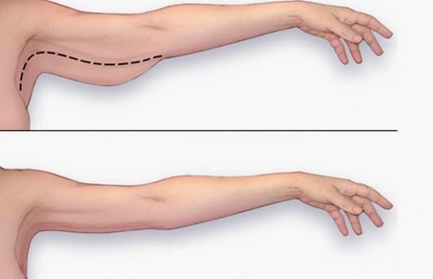 Maigrir des Bras  6 Exercices pour affiner ses bras en quelques semaines 77f24ccf5a0