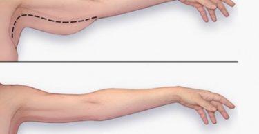 exercice pour maigrir des bras
