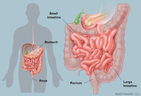 "rétrécissement intestinal ""img 2"""